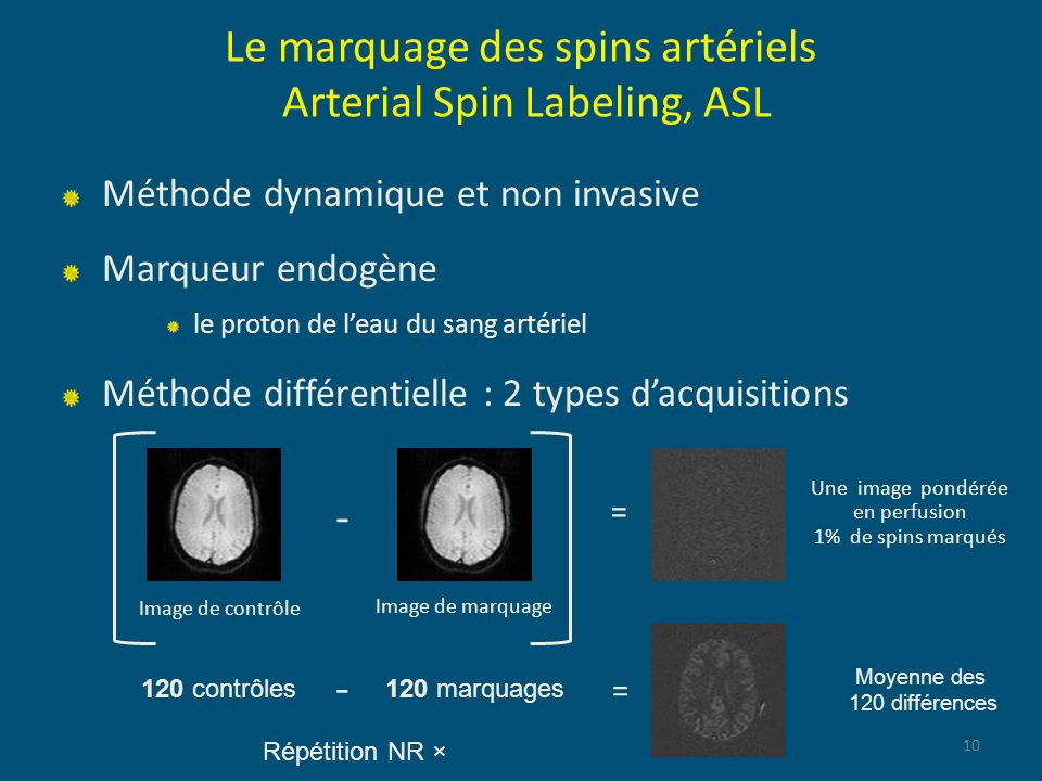 Le marquage des spins artériels Arterial Spin Labeling, ASL Méthode dynamique et non invasive Marqueur endogène le proton de leau du sang artériel Mét