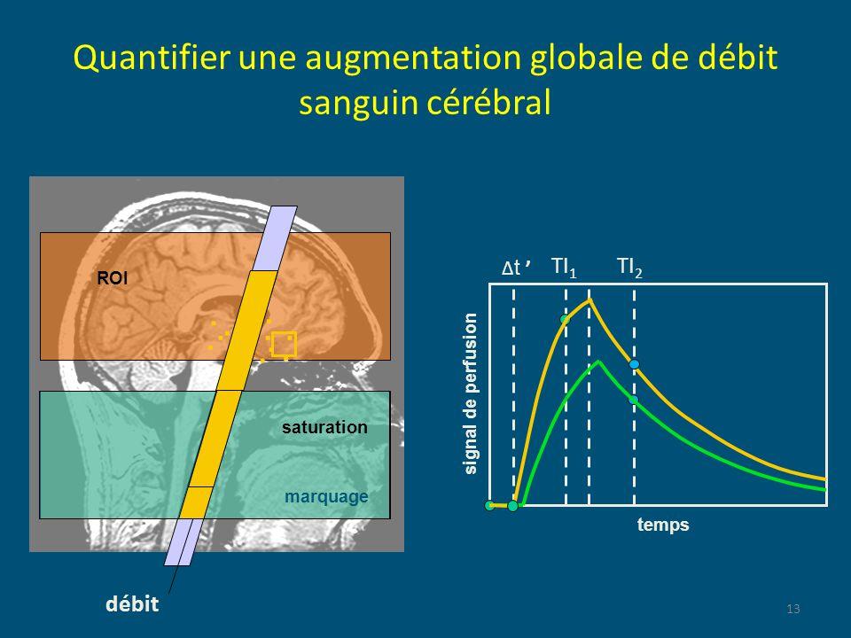 Quantifier une augmentation globale de débit sanguin cérébral 13 temps signal de perfusion débit ROI marquage t.......... TI 2 saturation TI 1