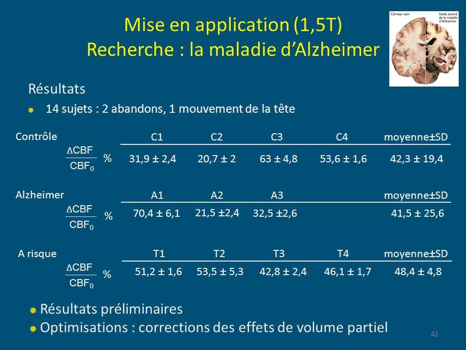 Résultats 14 sujets : 2 abandons, 1 mouvement de la tête 42 Mise en application (1,5T) Recherche : la maladie dAlzheimer A1 A2 A3moyenne±SD 70,4 ± 6,1