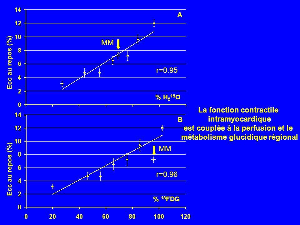 Ecc au repos (%) % H 2 15 O Ecc au repos (%) % 18 FDG A B MM r=0.95 r=0.96 La fonction contractile intramyocardique est couplée à la perfusion et le m