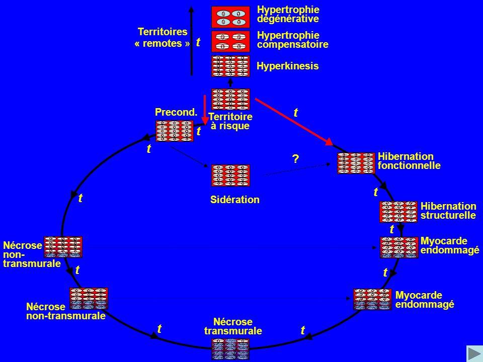Territoire à risque Territoires « remotes » t t t t t t t t t t Precond. Sidération Hibernation fonctionnelle Hibernation structurelle Nécrose transmu