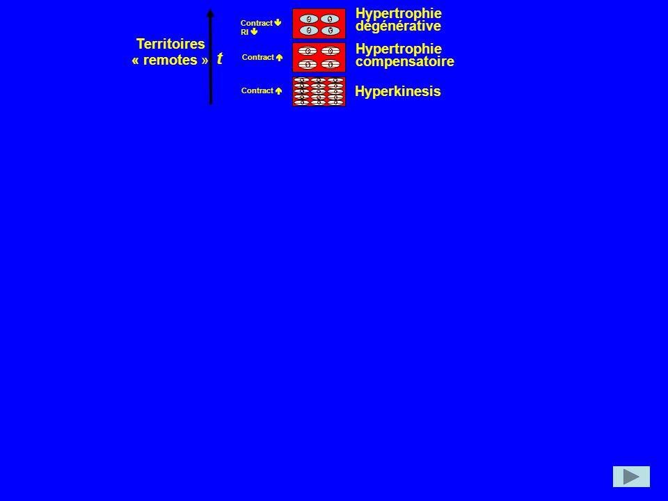 Hyperkinesis Hypertrophie compensatoire Hypertrophie dégénérative Territoires « remotes » t Contract RI