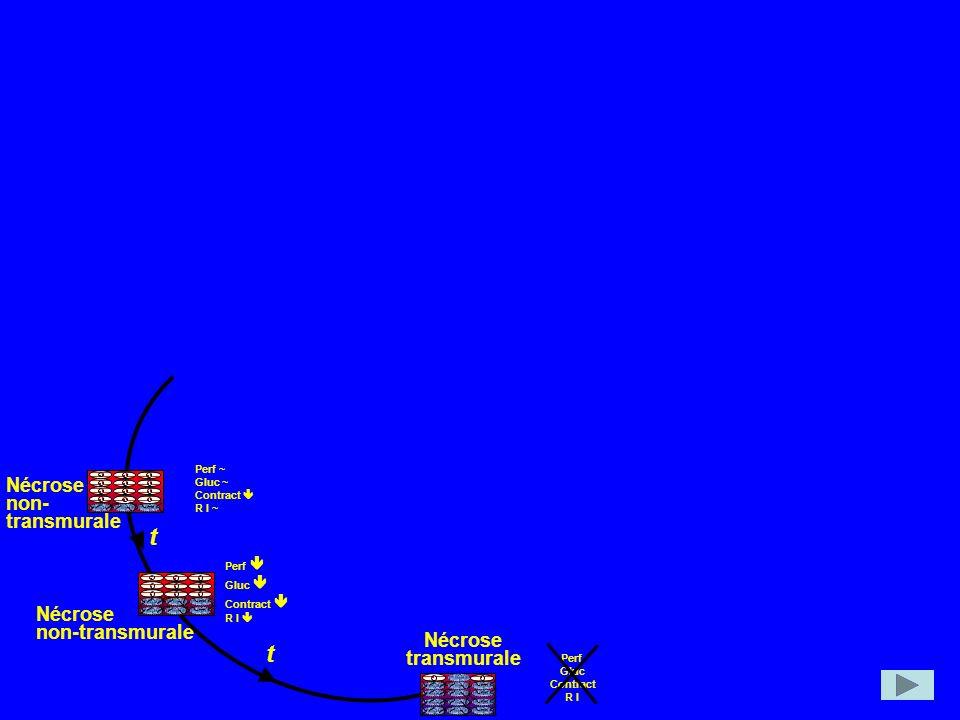 Nécrose non- transmurale Nécrose non-transmurale t t Nécrose transmurale Perf ~ Gluc ~ Contract R I ~ Perf Gluc Contract R I Perf Gluc Contract R I