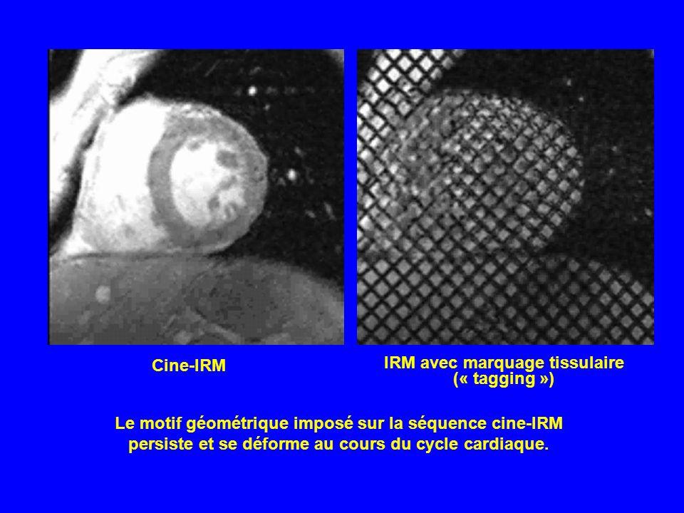 Le motif géométrique imposé sur la séquence cine-IRM persiste et se déforme au cours du cycle cardiaque. Cine-IRM IRM avec marquage tissulaire (« tagg