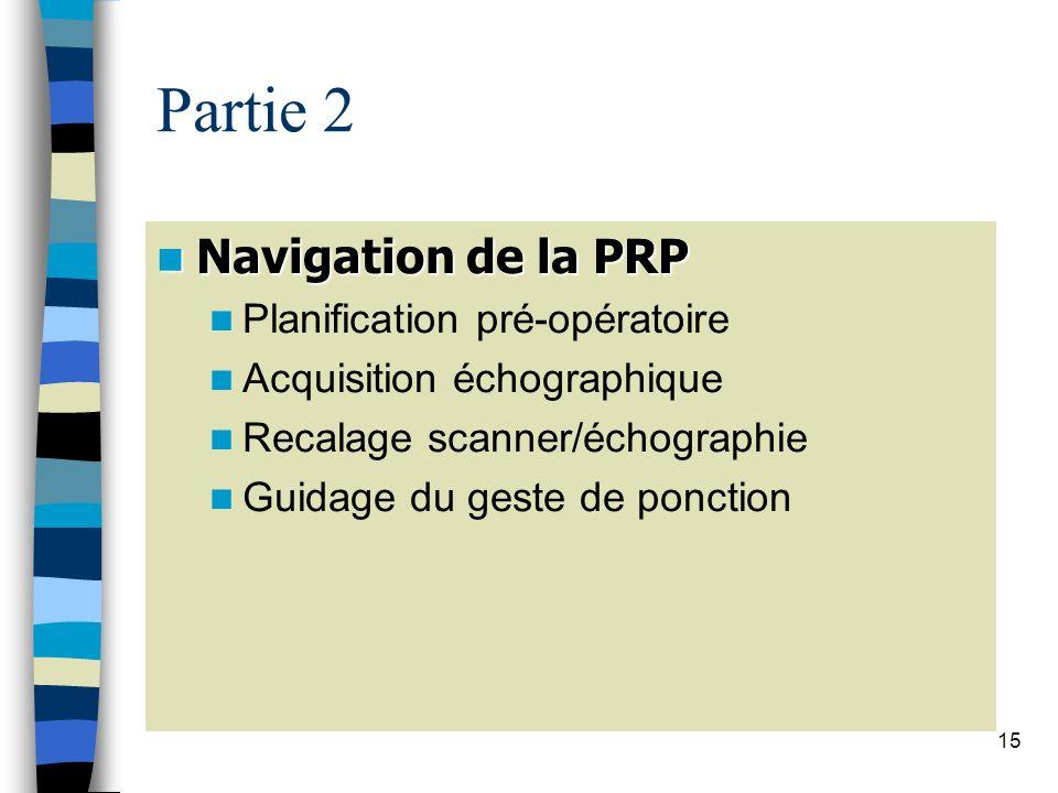 15 Partie 2 Navigation de la PRP Navigation de la PRP Planification pré-opératoire Acquisition échographique Recalage scanner/échographie Guidage du g