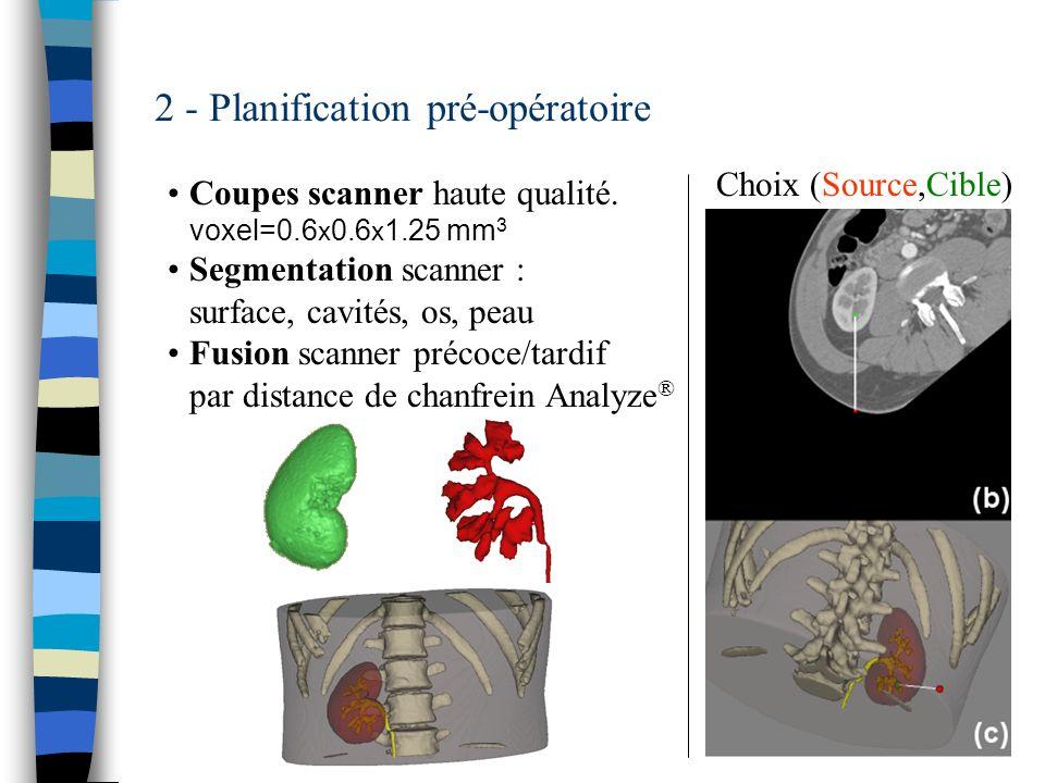 16 2 - Planification pré-opératoire Coupes scanner haute qualité. voxel=0.6 x 0.6 x 1.25 mm 3 Segmentation scanner : surface, cavités, os, peau Fusion