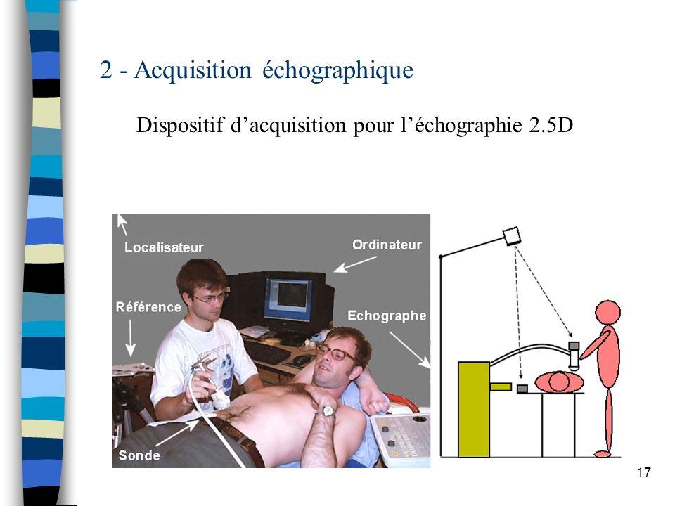 17 2 - Acquisition échographique Dispositif dacquisition pour léchographie 2.5D Localisateur