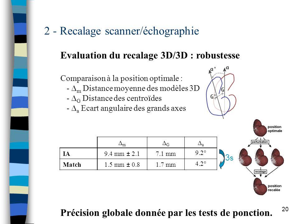 20 2 - Recalage scanner/échographie Evaluation du recalage 3D/3D : robustesse Comparaison à la position optimale : - m Distance moyenne des modèles 3D