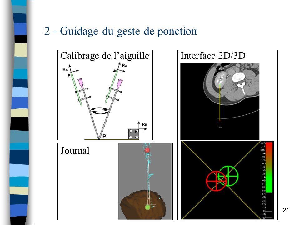 21 2 - Guidage du geste de ponction Calibrage de laiguilleInterface 2D/3D Journal