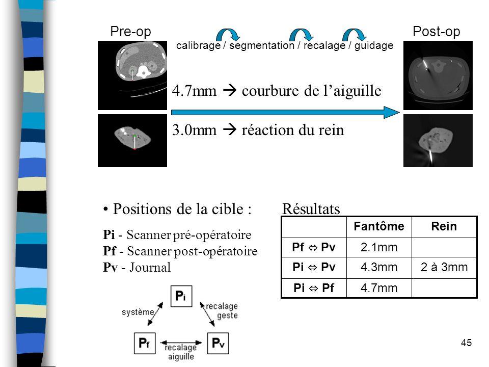45 ReinFantôme 4.7mm 4.3mm 2.1mm 2 à 3mm Pi Pf Pi Pv Pf Pv Positions de la cible : Pi - Scanner pré-opératoire Pf - Scanner post-opératoire Pv - Journ