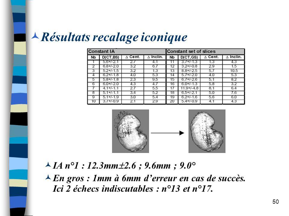 50 Résultats recalage iconique IA n°1 : 12.3mm 2.6 ; 9.6mm ; 9.0° En gros : 1mm à 6mm derreur en cas de succès. Ici 2 échecs indiscutables : n°13 et n