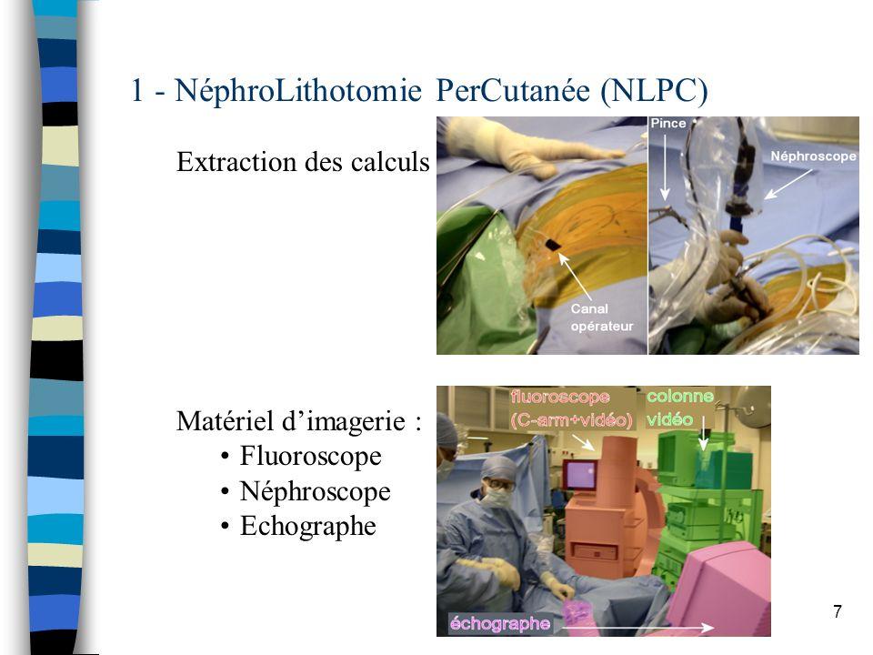 7 1 - NéphroLithotomie PerCutanée (NLPC) Extraction des calculs Matériel dimagerie : Fluoroscope Néphroscope Echographe