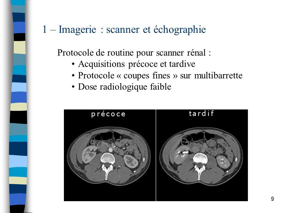 9 1 – Imagerie : scanner et échographie Protocole de routine pour scanner rénal : Acquisitions précoce et tardive Protocole « coupes fines » sur multi