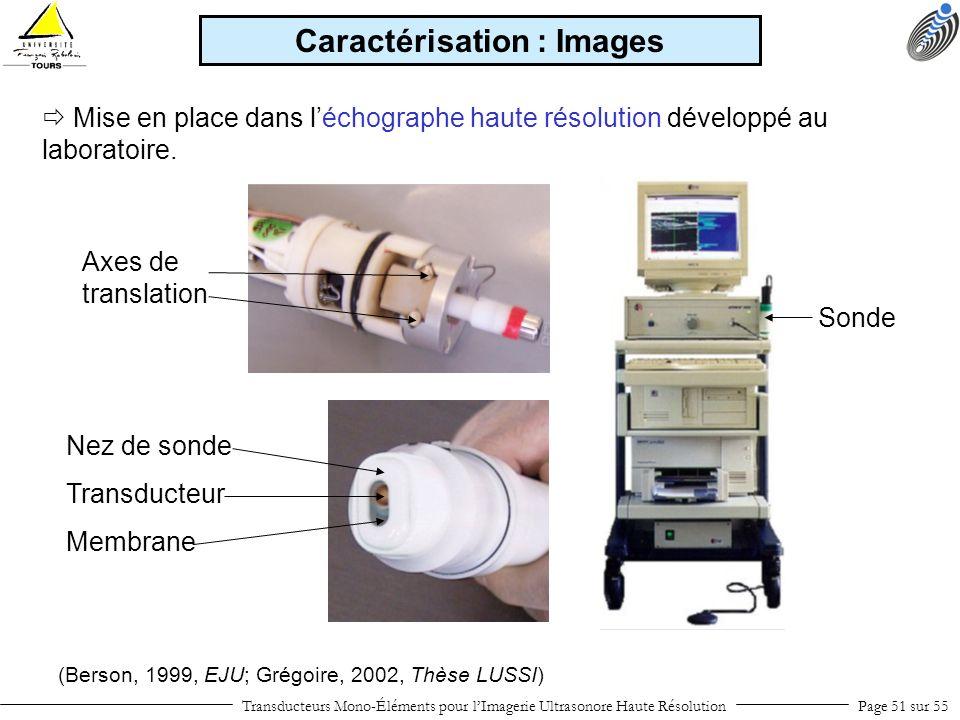 Transducteurs Mono-Éléments pour lImagerie Ultrasonore Haute RésolutionPage 51 sur 55 Mise en place dans léchographe haute résolution développé au lab
