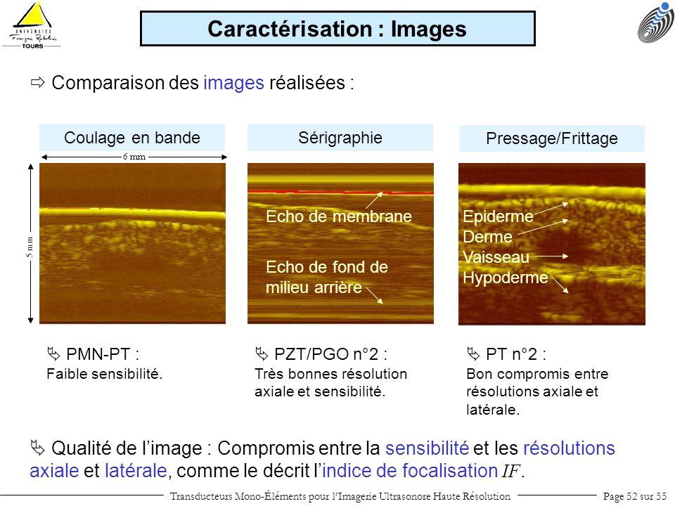 Coulage en bande Transducteurs Mono-Éléments pour lImagerie Ultrasonore Haute RésolutionPage 52 sur 55 Comparaison des images réalisées : Caractérisat