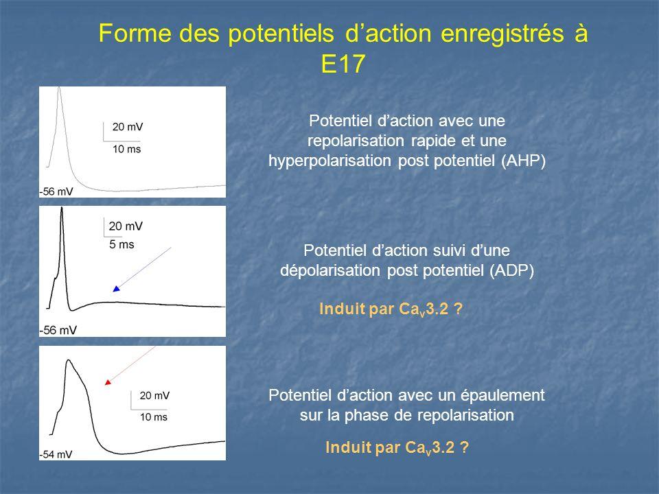 Forme des potentiels daction enregistrés à E17 Potentiel daction suivi dune dépolarisation post potentiel (ADP) Potentiel daction avec un épaulement s