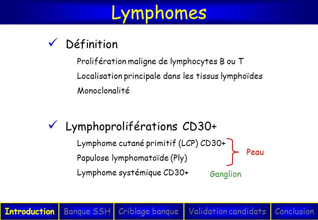 Lymphomes IntroductionConclusionBanque SSHCriblage banqueValidation candidats Définition Prolifération maligne de lymphocytes B ou T Localisation prin