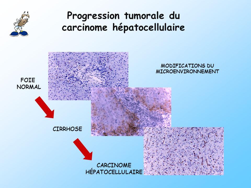 MODIFICATIONS DU MICROENVIRONNEMENT FOIE NORMAL CIRRHOSE CARCINOME HÉPATOCELLULAIRE Progression tumorale du carcinome hépatocellulaire