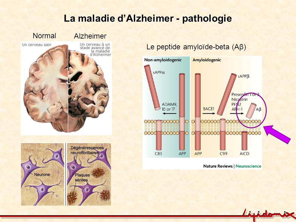 La maladie dAlzheimer - pathologie Normal Alzheimer Le peptide amyloïde-beta (Aβ)