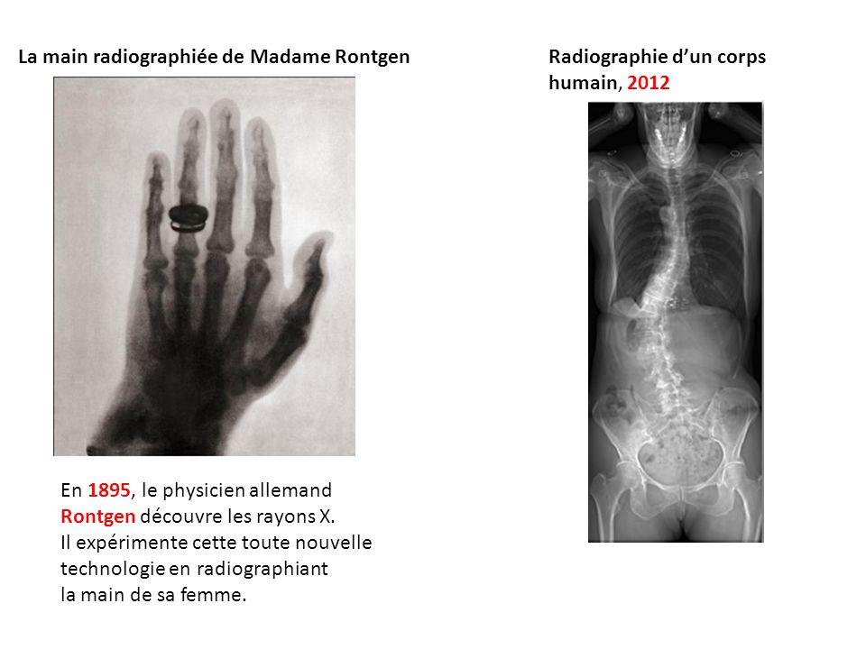 Radiographie dun corps humain, 2012 En 1895, le physicien allemand Rontgen découvre les rayons X. Il expérimente cette toute nouvelle technologie en r