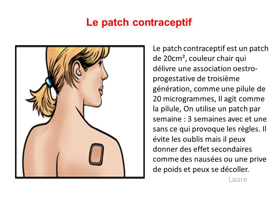 Le patch contraceptif Le patch contraceptif est un patch de 20cm², couleur chair qui délivre une association oestro- progestative de troisième générat
