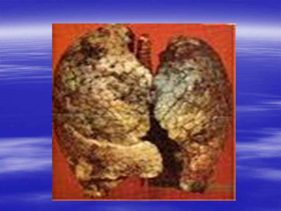 Les résultats de fumer : La fume tue La fume tue