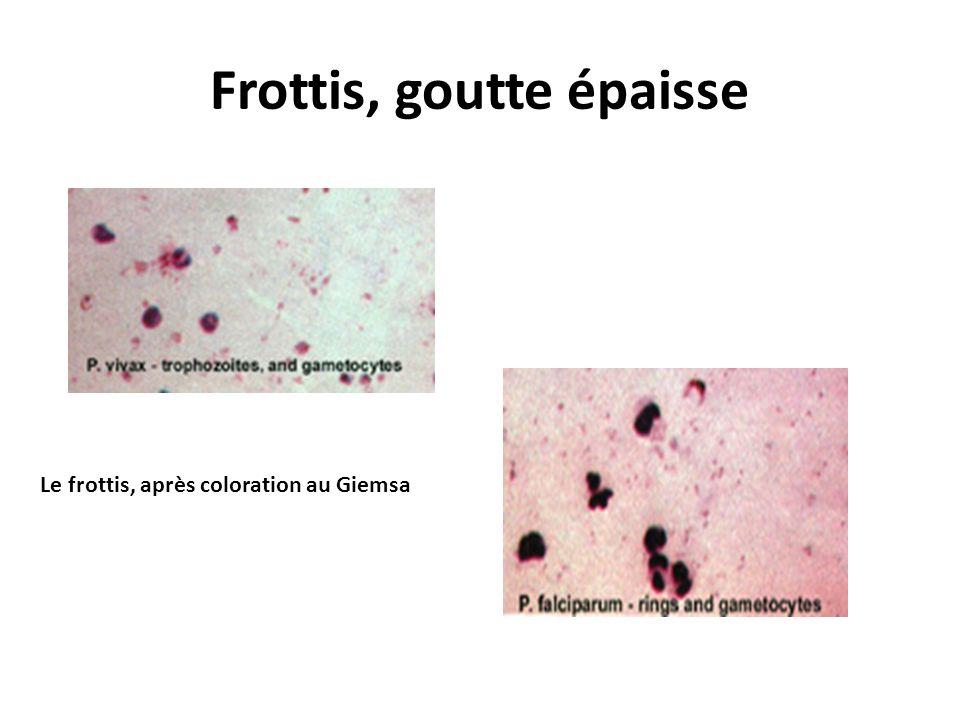 Frottis, goutte épaisse Le frottis, après coloration au Giemsa