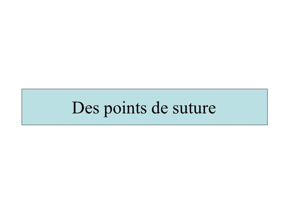Des points de suture