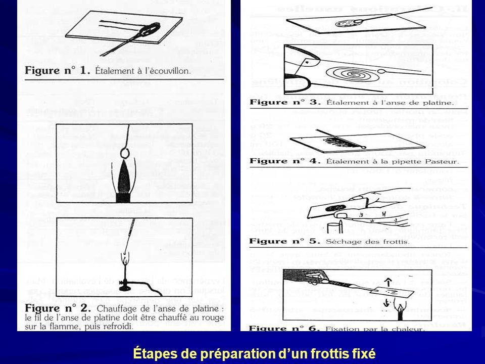 Étapes de préparation dun frottis fixé