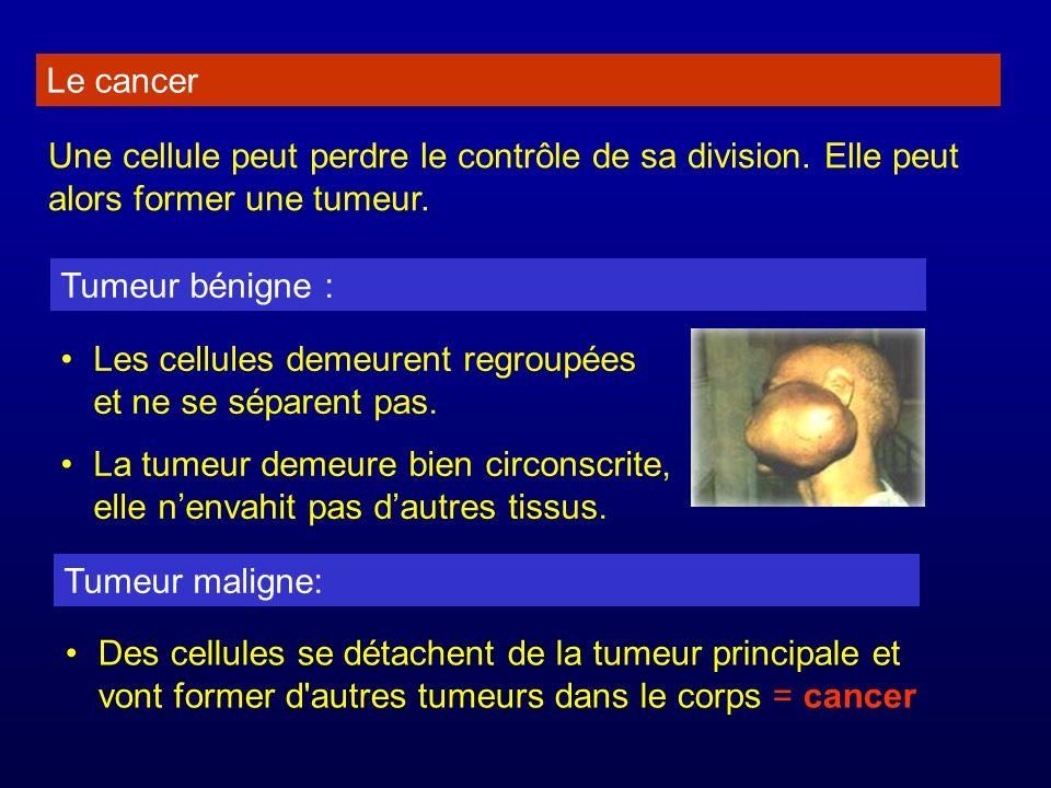 Le cancer Une cellule peut perdre le contrôle de sa division. Elle peut alors former une tumeur. Tumeur bénigne : Les cellules demeurent regroupées et