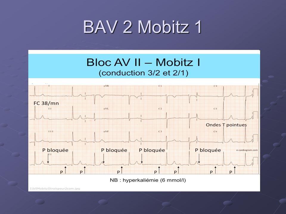BAV 2 Mobitz 1