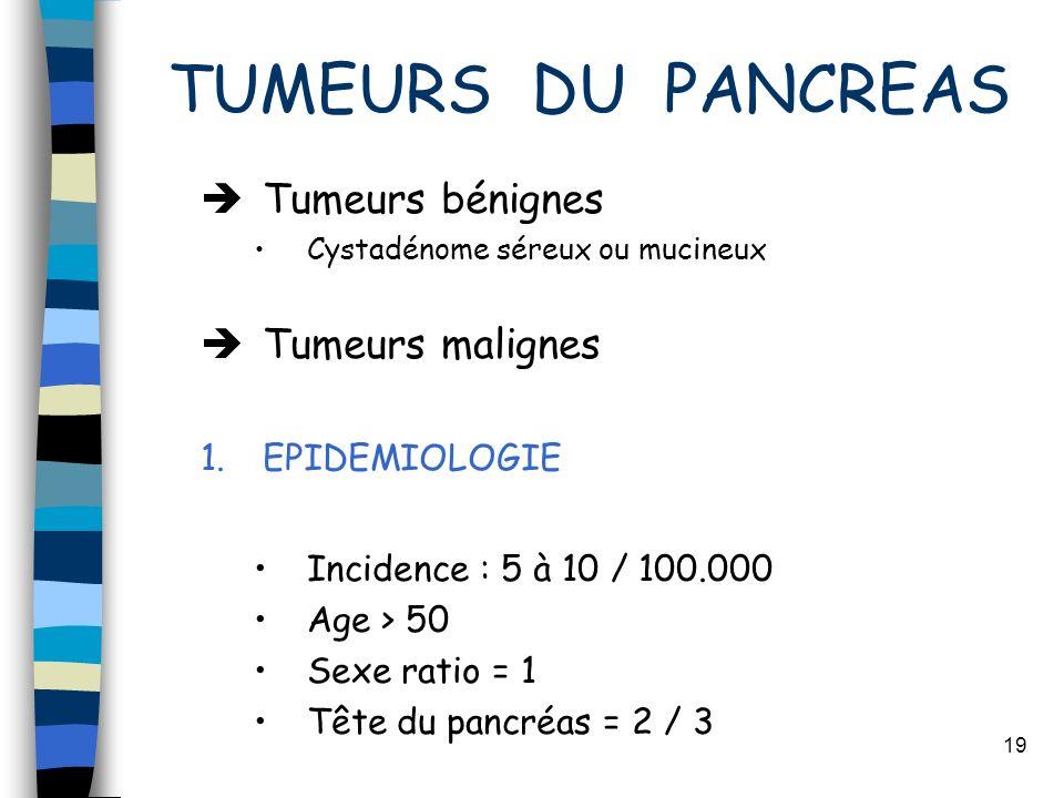 19 TUMEURS DU PANCREAS Tumeurs bénignes Cystadénome séreux ou mucineux Tumeurs malignes 1.EPIDEMIOLOGIE Incidence : 5 à 10 / 100.000 Age > 50 Sexe rat