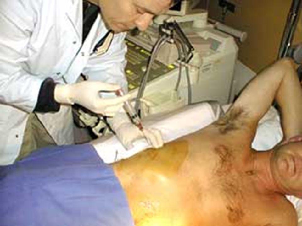 Joëlle MULLER-Année 2006 IFSI-CH Saint Quentin La biopsie hépatique