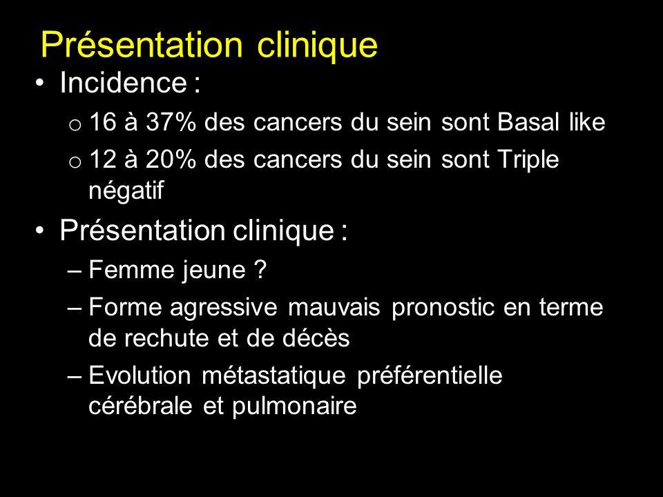 Présentation clinique Incidence : o 16 à 37% des cancers du sein sont Basal like o 12 à 20% des cancers du sein sont Triple négatif Présentation clini