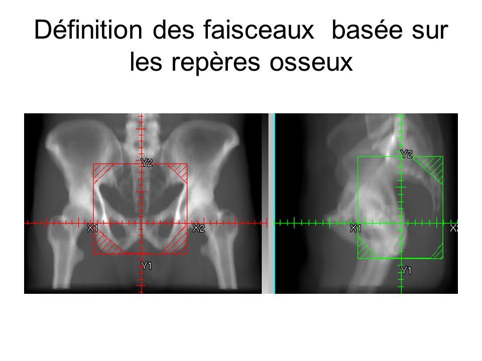 Définition des faisceaux basée sur les repères osseux