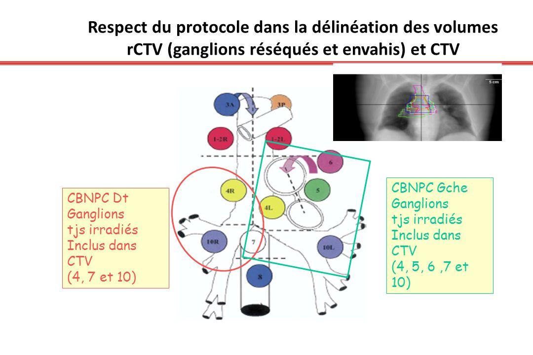 Respect du protocole dans la délinéation des volumes rCTV (ganglions réséqués et envahis) et CTV CBNPC Dt Ganglions tjs irradiés Inclus dans CTV (4, 7