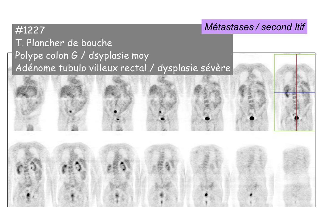#1227 T. Plancher de bouche Polype colon G / dsyplasie moy Adénome tubulo villeux rectal / dysplasie sévère Métastases / second Itif