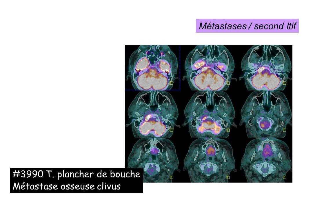 #3990 T. plancher de bouche Métastase osseuse clivus Métastases / second Itif