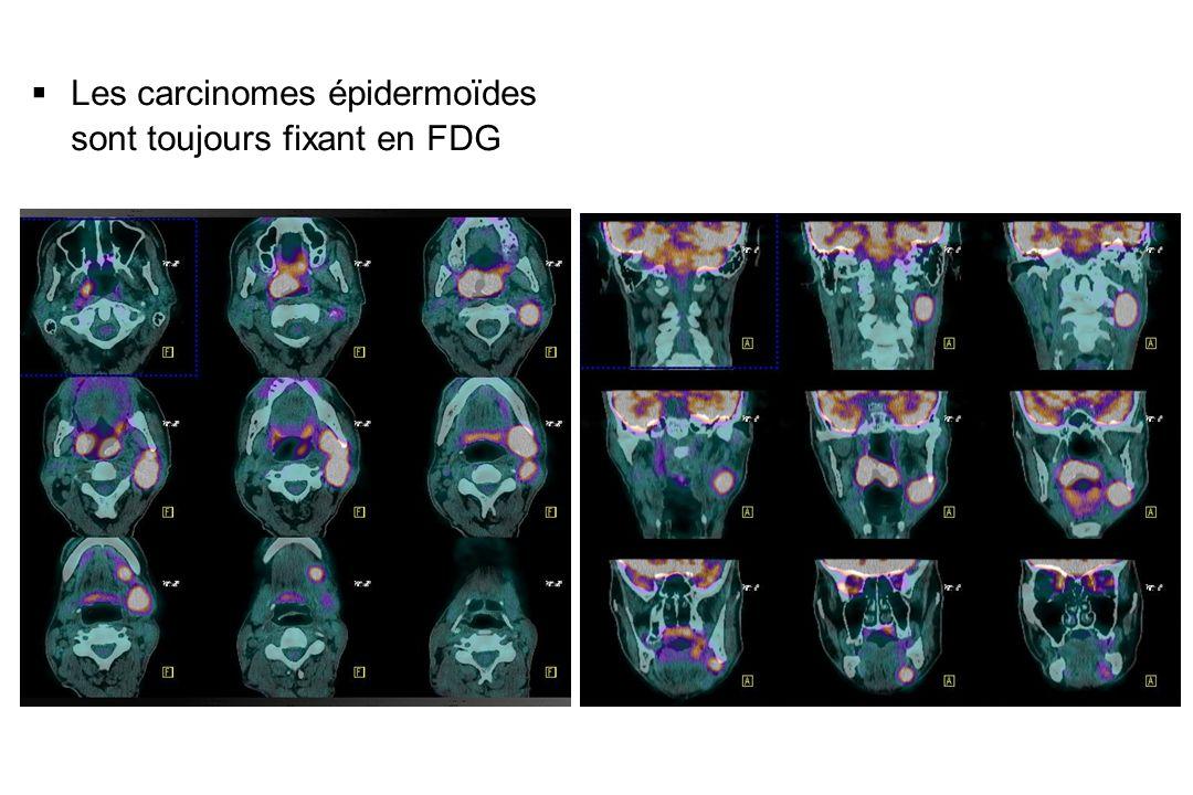 Les carcinomes épidermoïdes sont toujours fixant en FDG