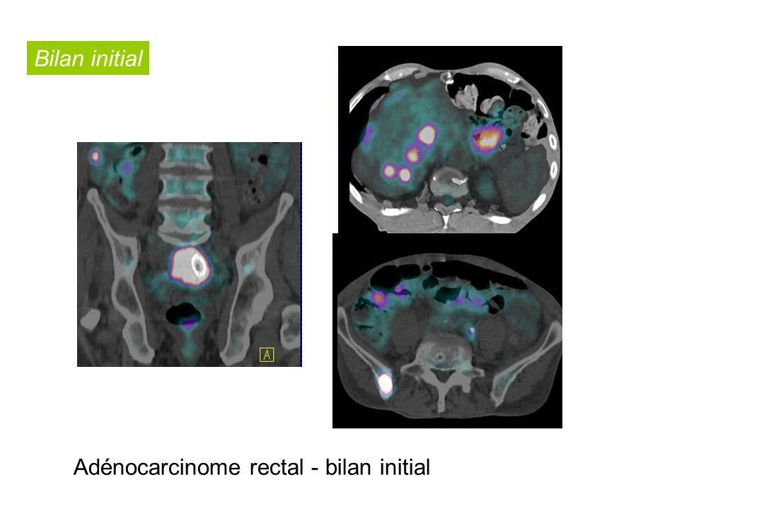 - Bilan initial adénocarcinome rectal Bilan initial Adénocarcinome rectal - bilan initial