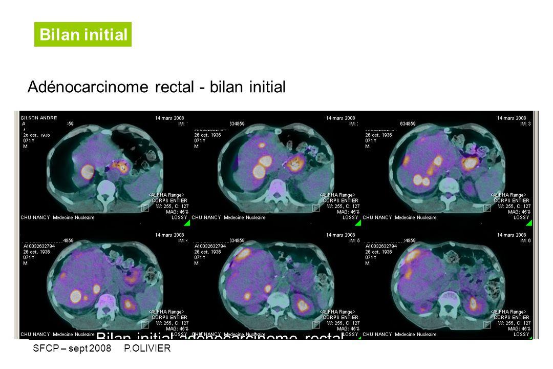 Bilan initial - Bilan initial adénocarcinome rectal Adénocarcinome rectal - bilan initial SFCP – sept 2008 P.OLIVIER