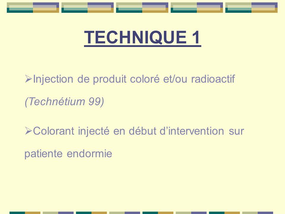 TECHNIQUE 1 (Suite) Traceur radioactif est injecté 3 à 18 h avant la chirurgie Lympho-scintigraphie pré opératoire pour topographie extra axillaire Injection péri tumorale ou péri aréollaire sous dermique (FRANSENOD)