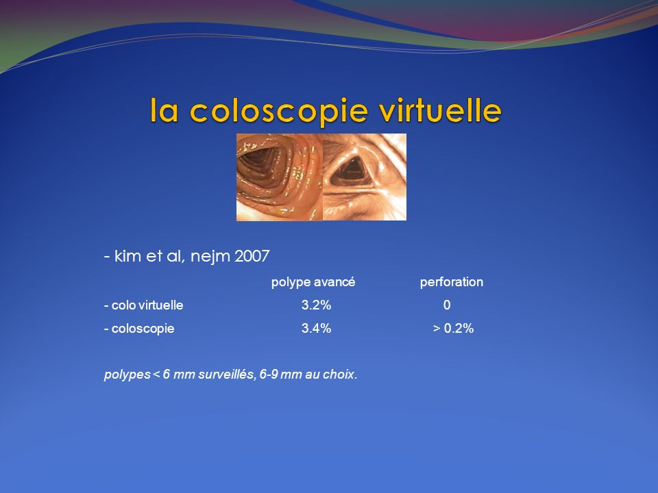 - kim et al, nejm 2007 polype avancé perforation - colo virtuelle3.2% 0 - coloscopie3.4%> 0.2% polypes < 6 mm surveillés, 6-9 mm au choix.