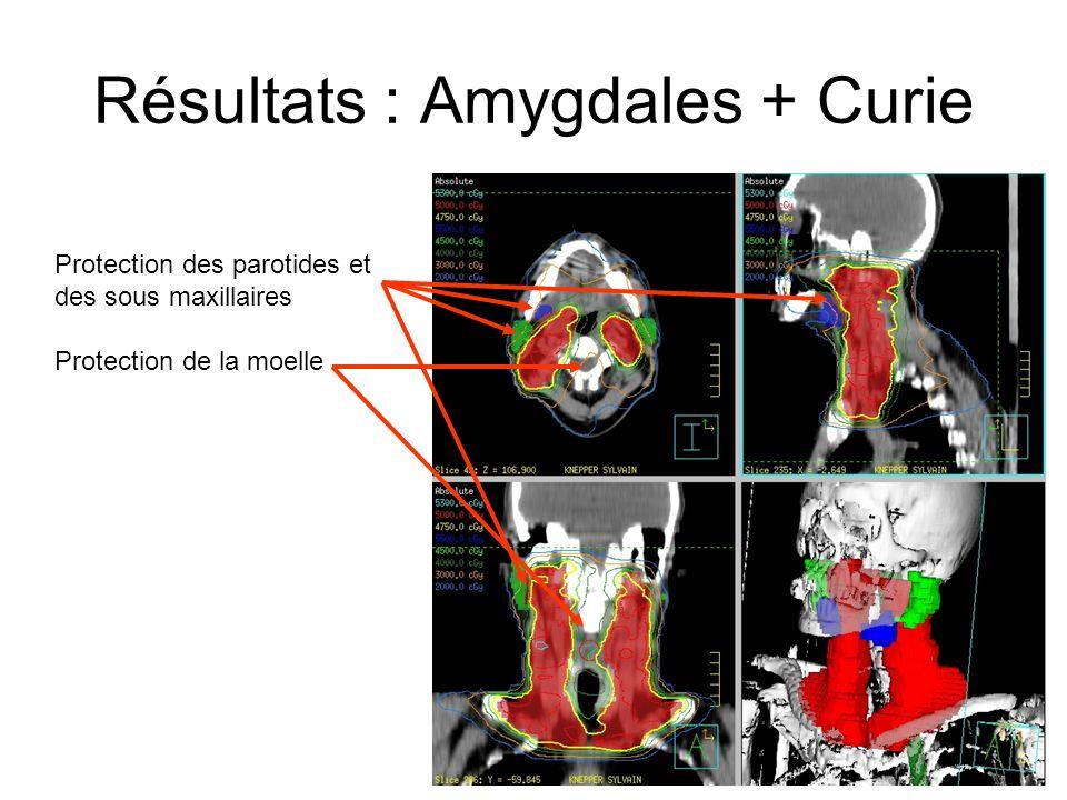 Résultats : Amygdales + Curie Protection des parotides et des sous maxillaires Protection de la moelle