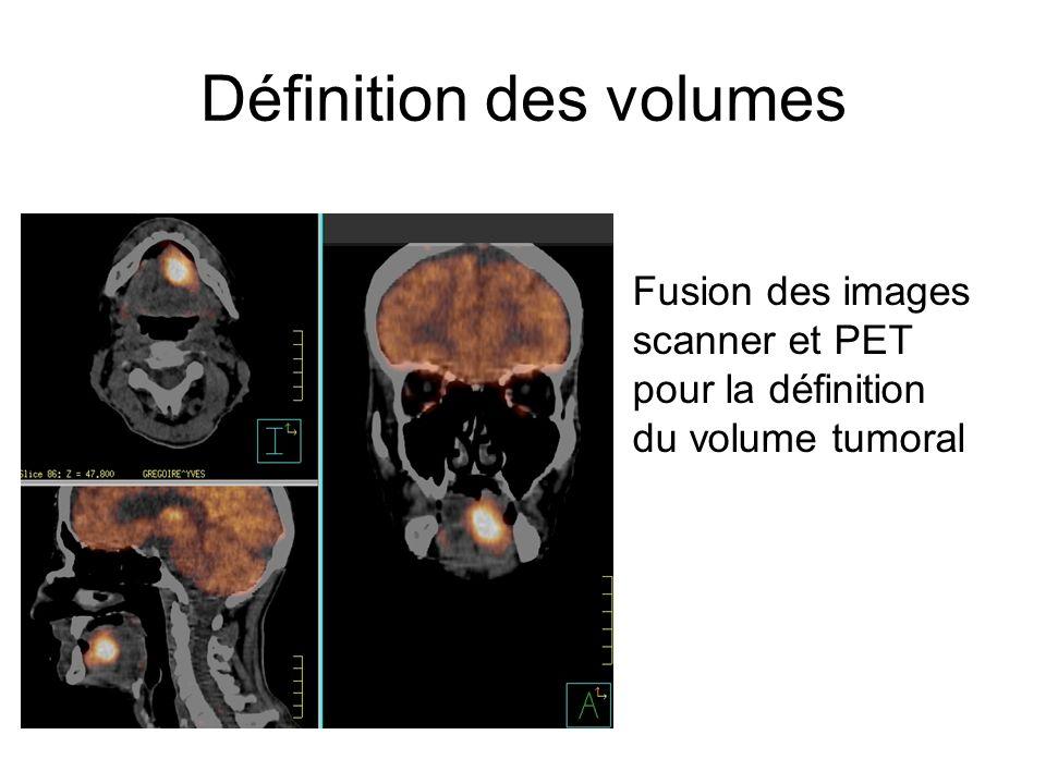 Définition des volumes Fusion des images scanner et PET pour la définition du volume tumoral