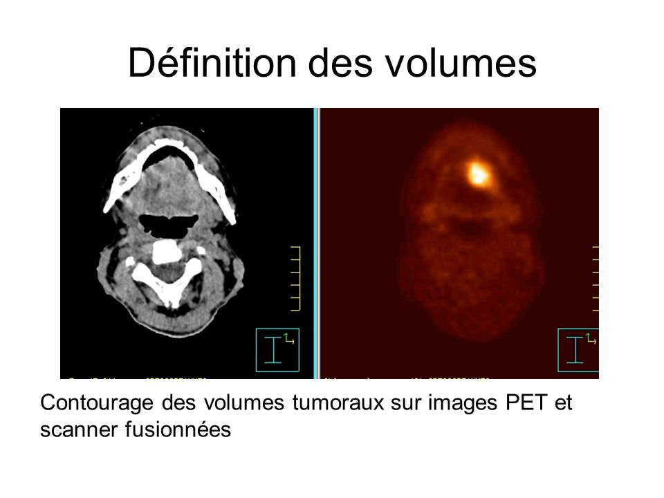 Définition des volumes Contourage des volumes tumoraux sur images PET et scanner fusionnées