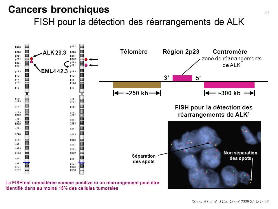 Cancers bronchiques 1 Shaw AT et al. J Clin Oncol 2009;27:4247-53 FISH pour la détection des réarrangements de ALK ~250 kb~300 kb zone de réarrangemen