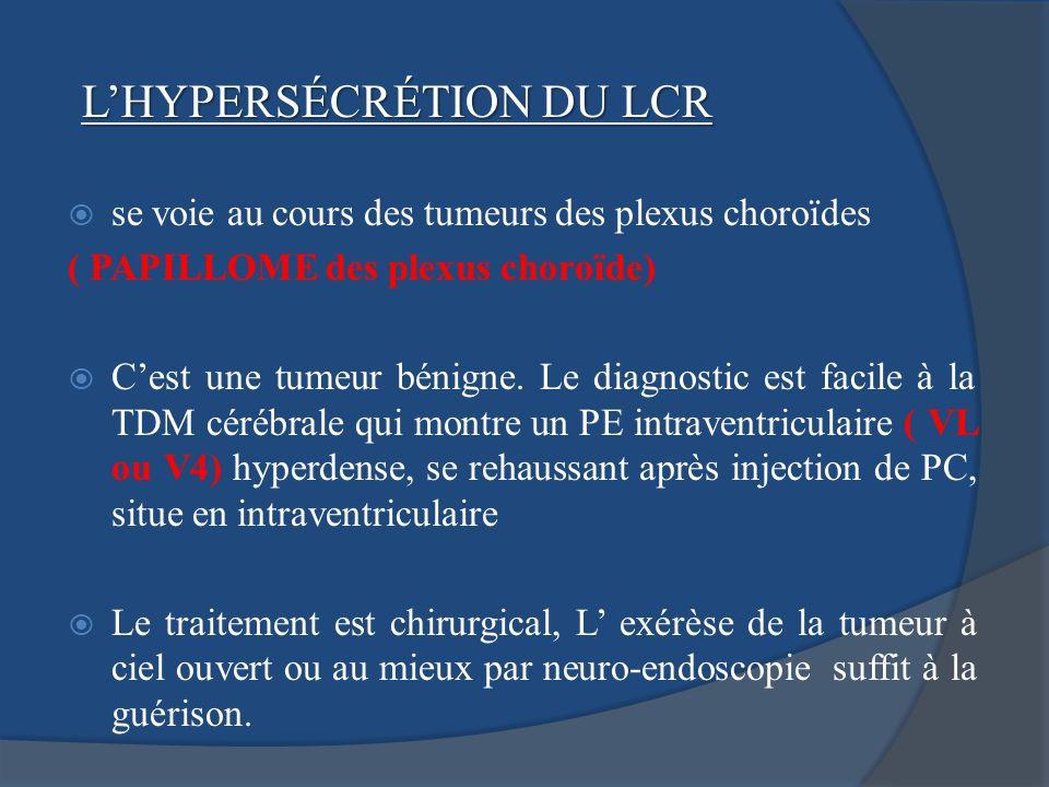 se voie au cours des tumeurs des plexus choroïdes ( PAPILLOME des plexus choroïde) Cest une tumeur bénigne. Le diagnostic est facile à la TDM cérébral