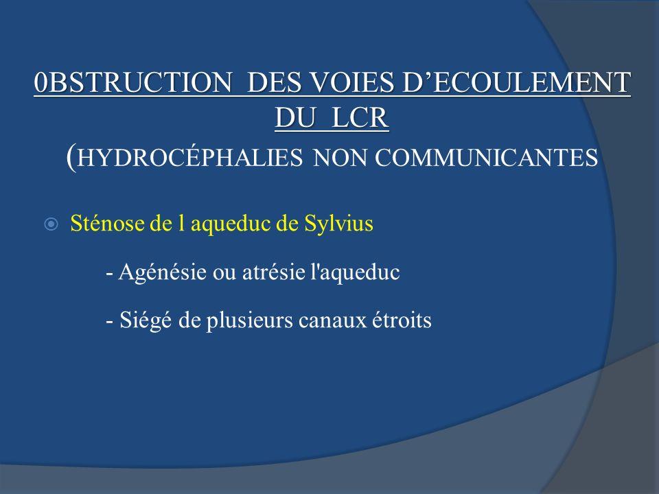 Sténose de l aqueduc de Sylvius - Agénésie ou atrésie l'aqueduc - Siégé de plusieurs canaux étroits 0BSTRUCTION DES VOIES DECOULEMENT DU LCR ( HYDROCÉ