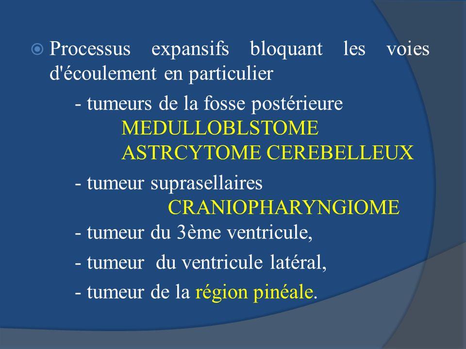 Processus expansifs bloquant les voies d'écoulement en particulier - tumeurs de la fosse postérieure MEDULLOBLSTOME ASTRCYTOME CEREBELLEUX - tumeur su